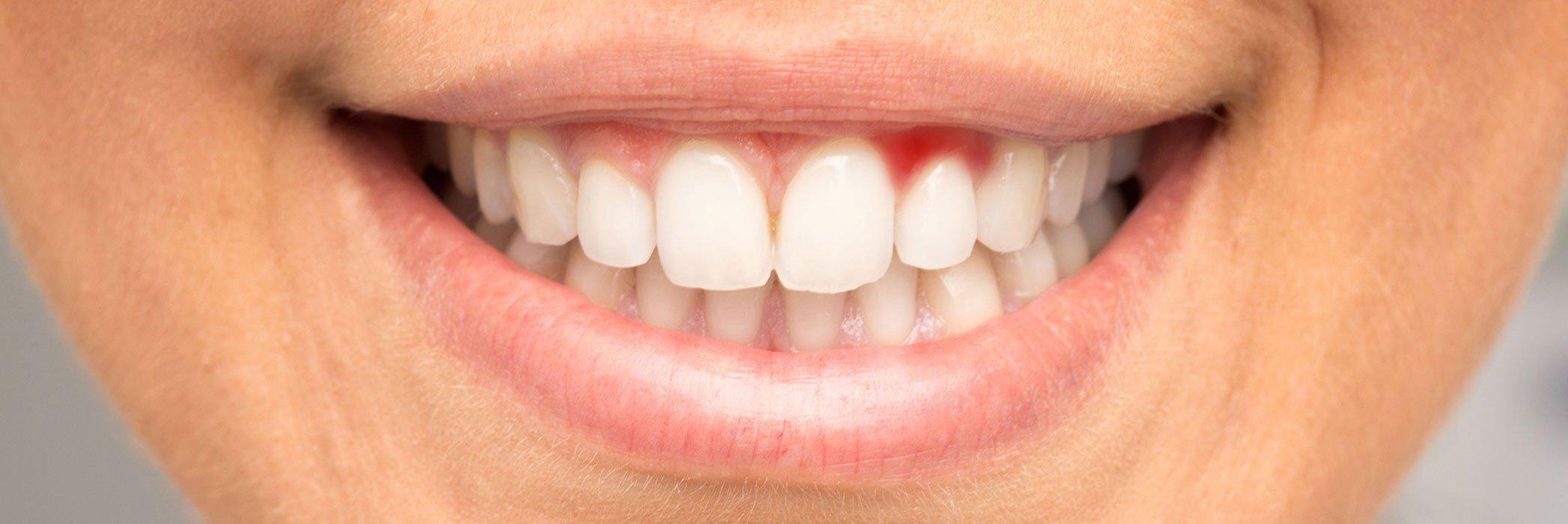 Parodontite e doxiciclina topica, lo stato dell'arte