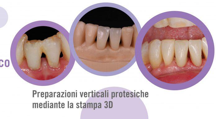 preparazioni verticali protesiche: caso clinico - Kulzer Blog