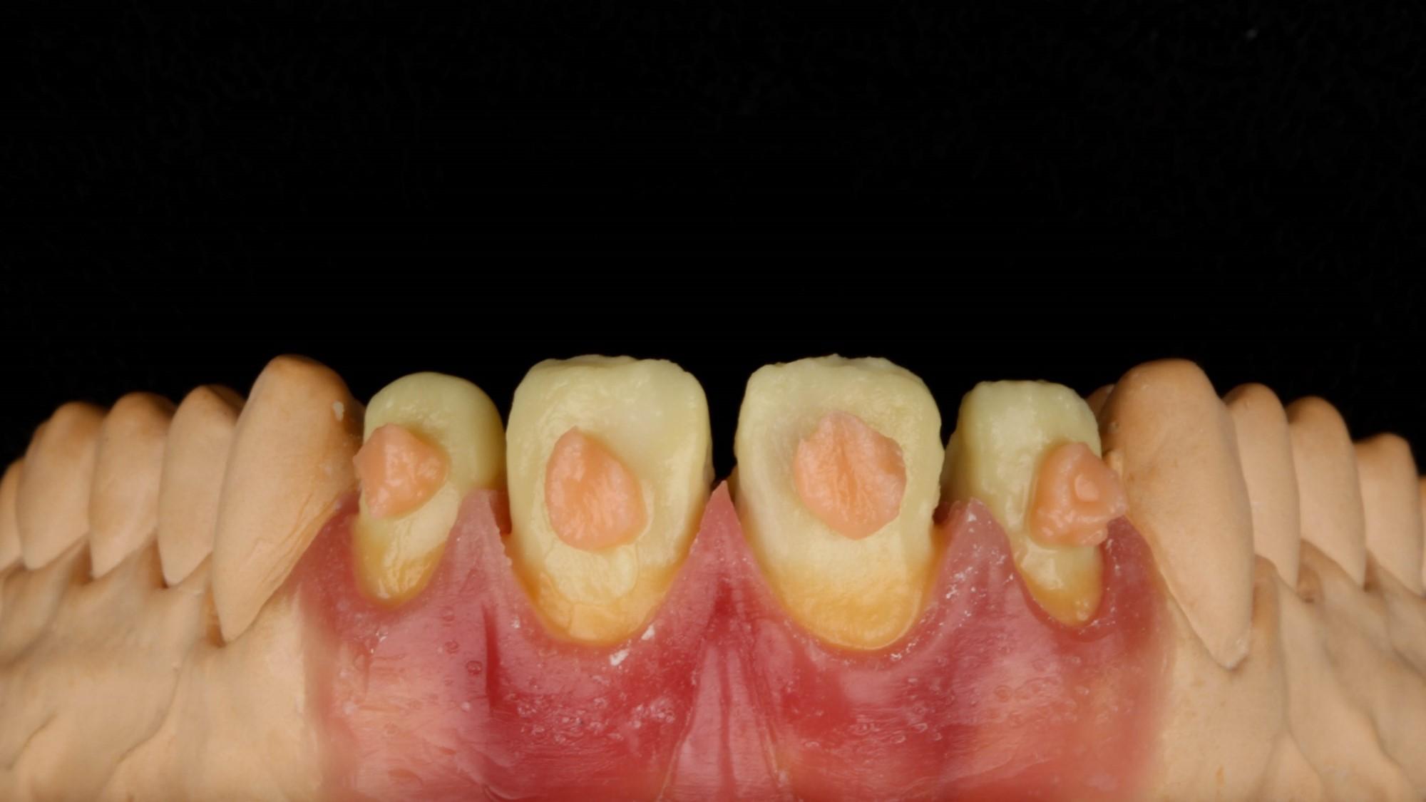 Figura 11 - Applicazione della Dentina B1.