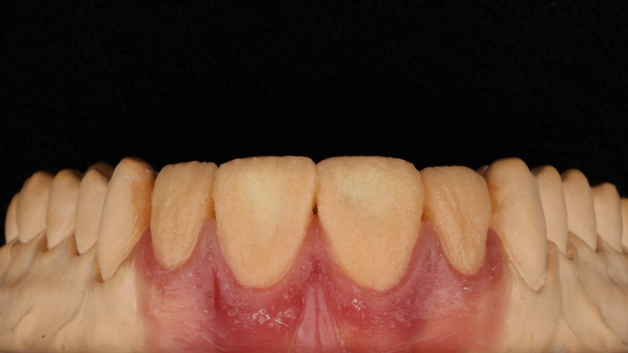 Figura 12 - Applicazione della Dentina B1.