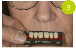 Fig. 3 Scelta: denti Pala Premium 6 per la protesi inferiore