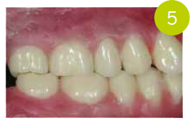 Fig. 5 Montaggio: Pala Idealis in occlusione corretta, secondo l'età della paziente